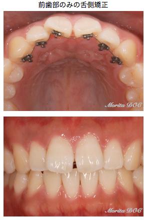 前歯舌側矯正/マウスピース矯正(アソアライナー(R))
