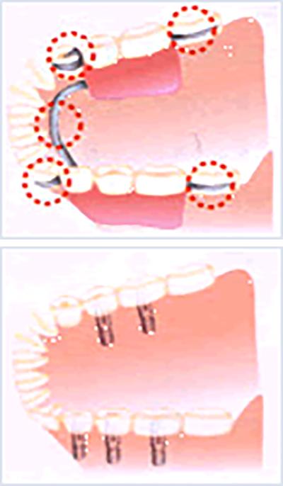 部分入れ歯からインプラントへ