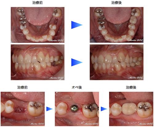 下顎左側第一大臼歯欠損部インプラント症例