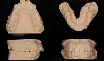 歯型の印象